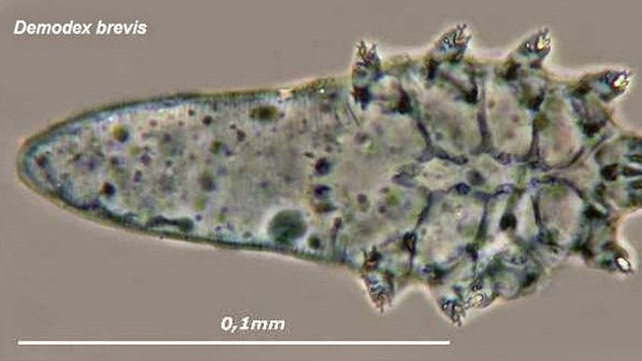 Demodex Brevis: Symptoms, Causes, and Treatments