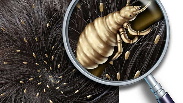 Lice Bites How To Identify And Treat