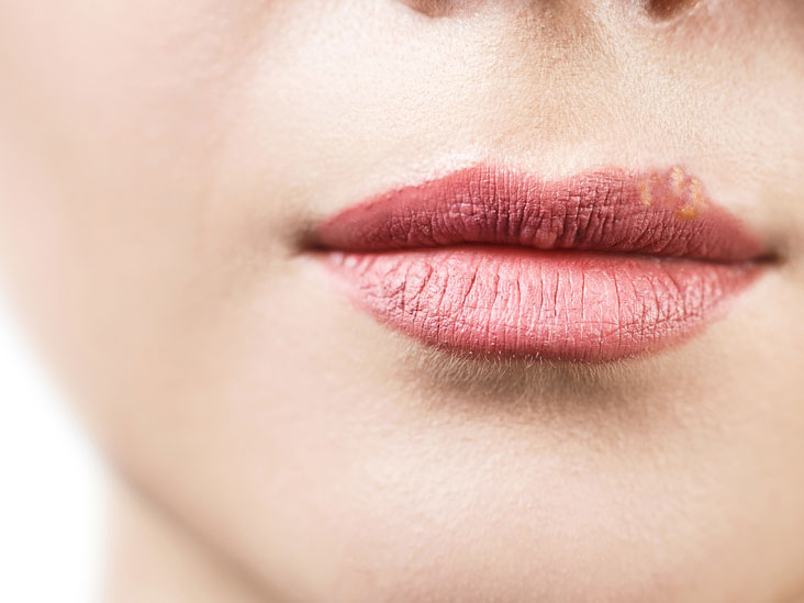 White Bumps on Lips: Causes, Treatments, and More