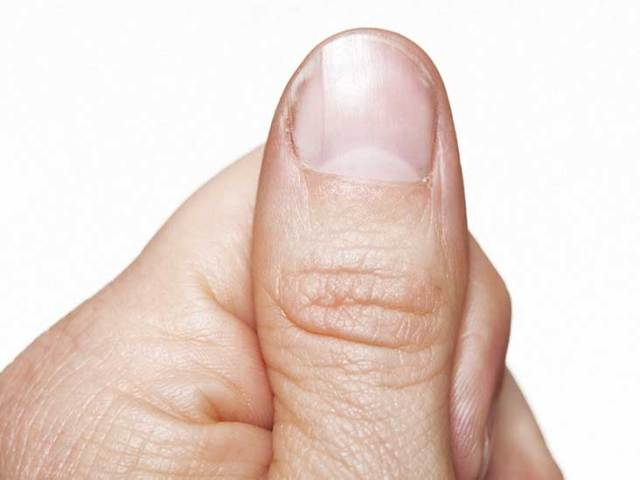 Half Moon Nails: Why You Do or Don't Have It, Symptoms to Watch For