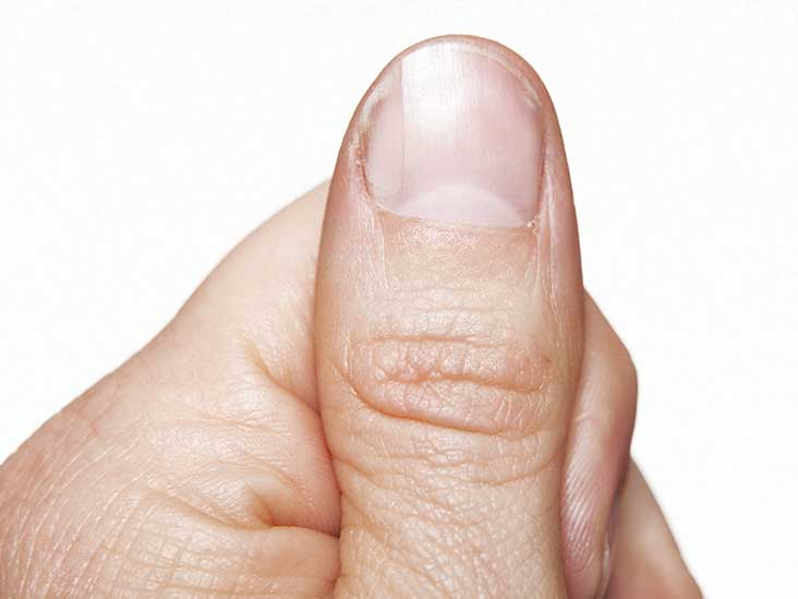 Thick Toenails: Pictures, Causes, and Home Treatments
