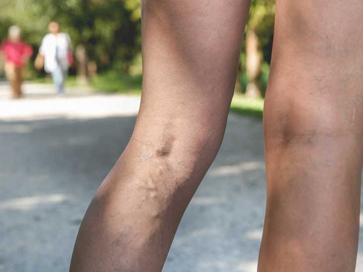 Itchy Varicose Veins: Why It Happens and What You Can Do