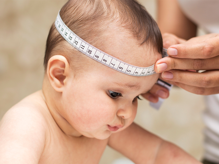 Frontal Bossing: Causes, Signs, and Diagnosis