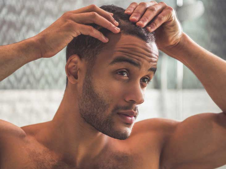 how to stop receding hairline male