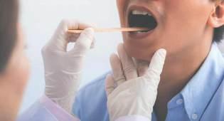white pus in throat not strep