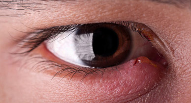 Sore Eye Remedies Natural And Home Treatment Options