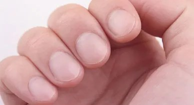 Ridges in Fingernails: Symptoms, Causes, and Treatments