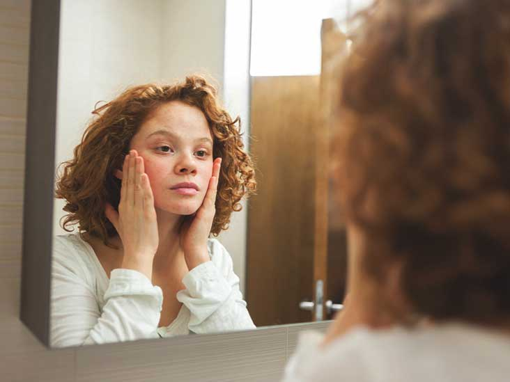 Acne Treatments for Teens: Types, Benefits, Side Effects & More