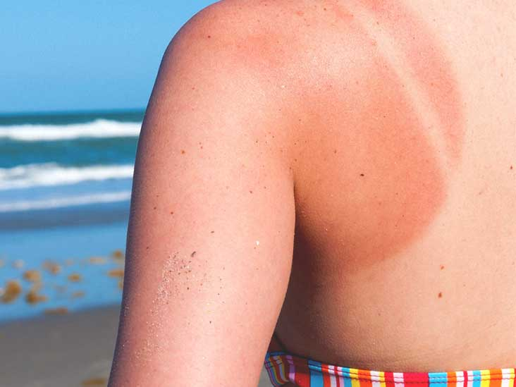 Sunburned Lips: Swelling, Healing Time, and More