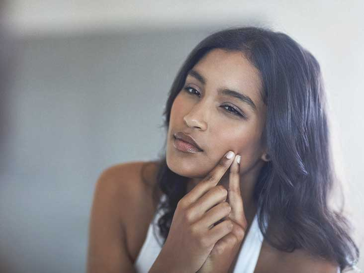 Treating Atrophic Scars: Peels, Fillers, and More