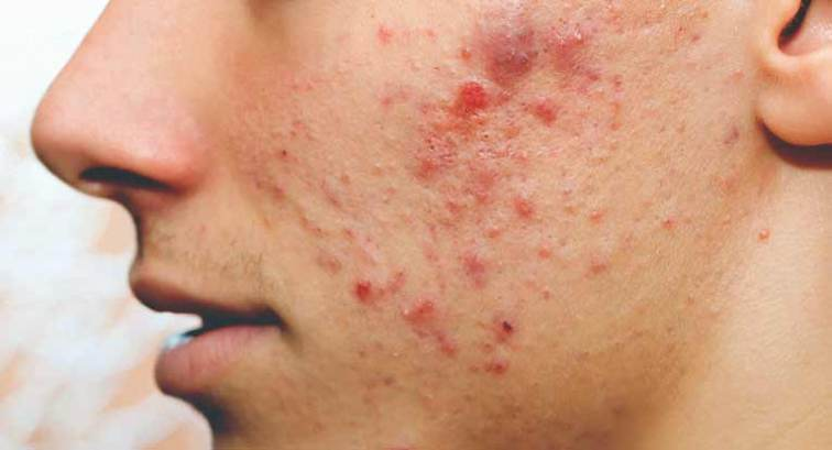 Sebaceous Cyst: Causes, Diagnosis, and Treatment