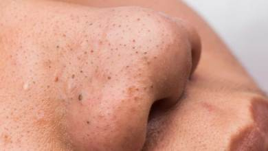Blackheads. The reasons for her appearance. And the ways to treat it.