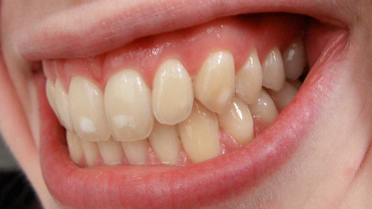 How do u make your teeth white in a day
