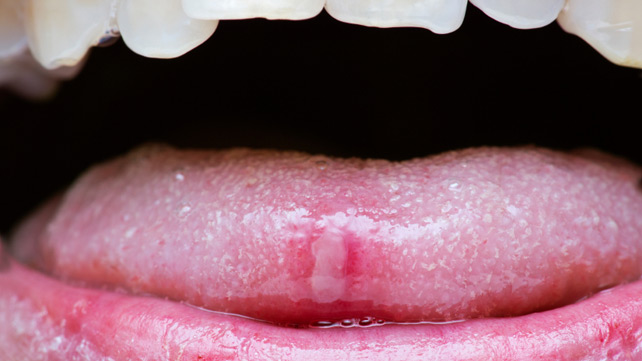 Tongue Problems: Symptoms, Causes, Diagnosis & Treatment
