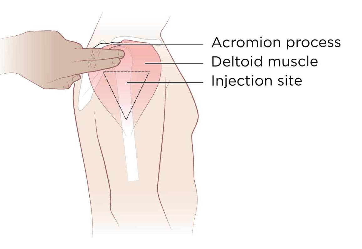 Intramuscular Injection: Definition and Patient Education