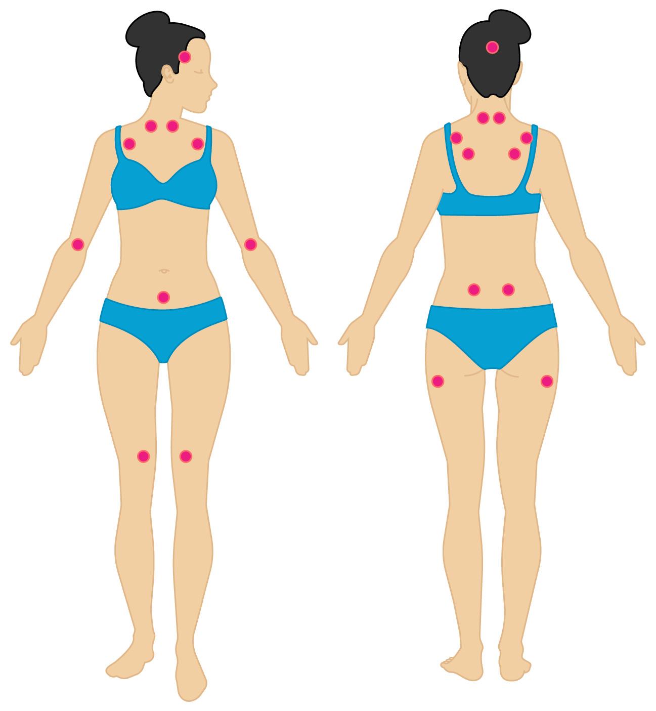 pictures of fibromyalgia symptoms Fibromyalgia Pain Diagram
