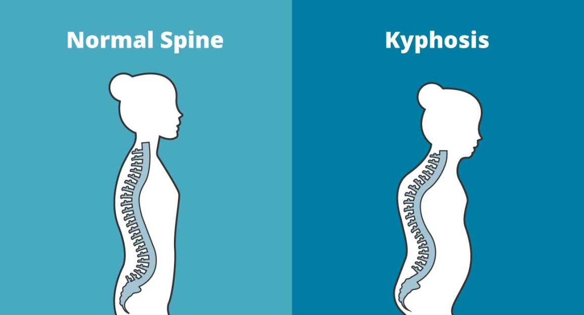 Kyphosis Exercises: Treat a Rounded Upper Back