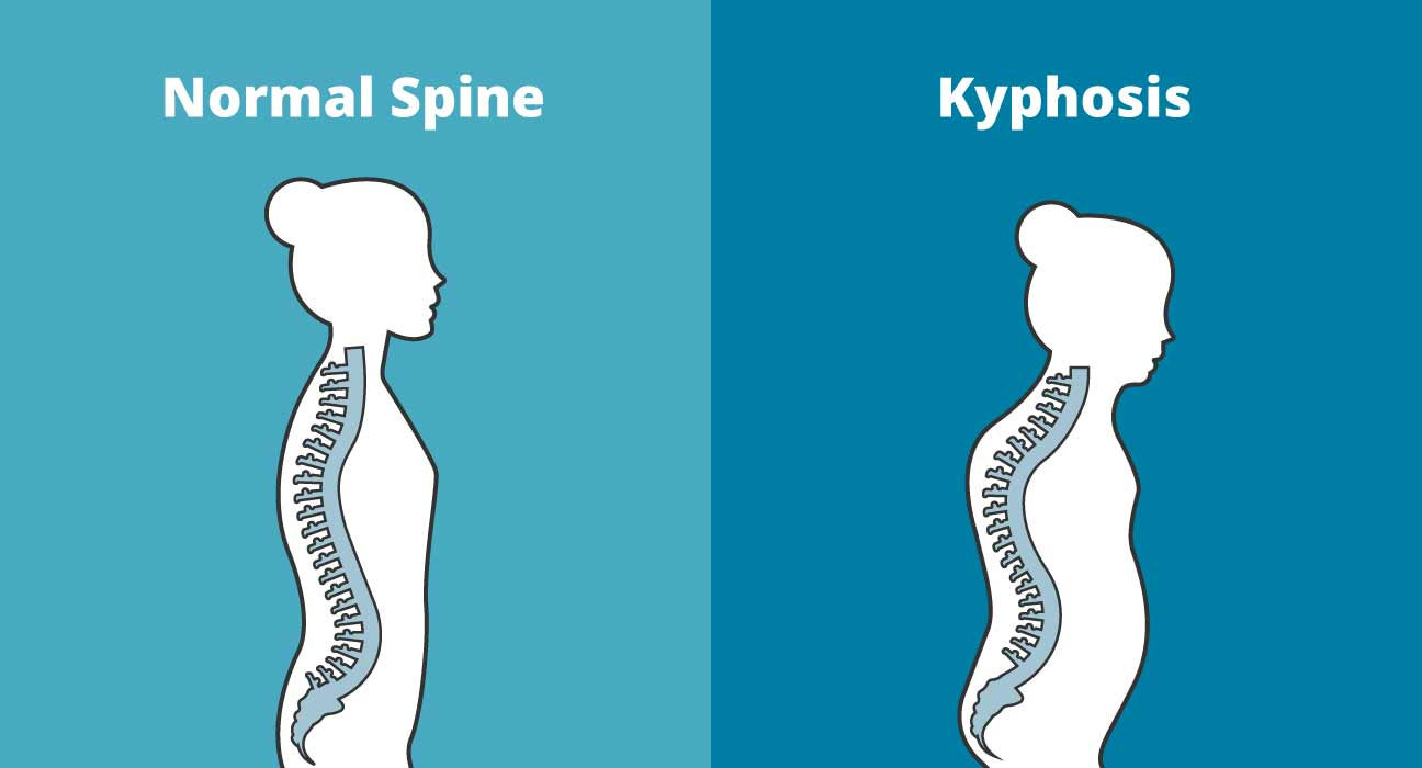 hight resolution of kyphosis exercises to treat your rounded upper back