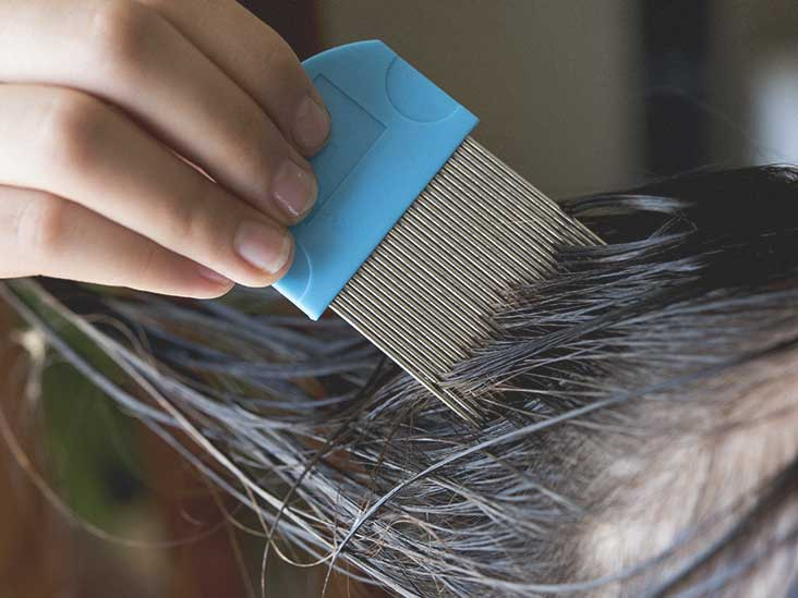 Head Lice Infestation: Causes, Symptoms & Diagnosis