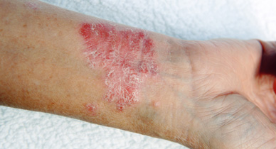 Psoriasis vs  Folliculitis: Know the Facts