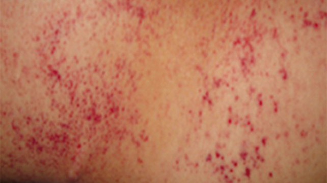 Anemia Rash: Causes, Pictures, and Treatment