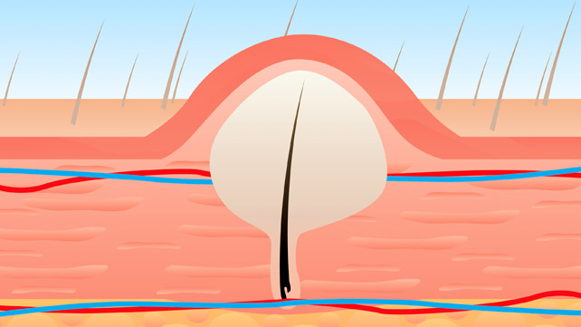 ingrown hair illustration