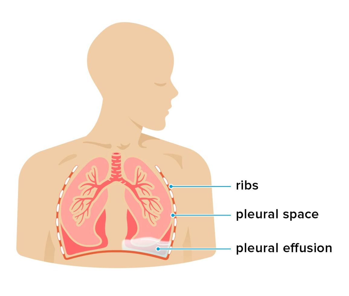 Fluid in the chest