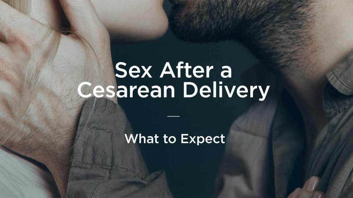 Sex After C-Section: What to Expect