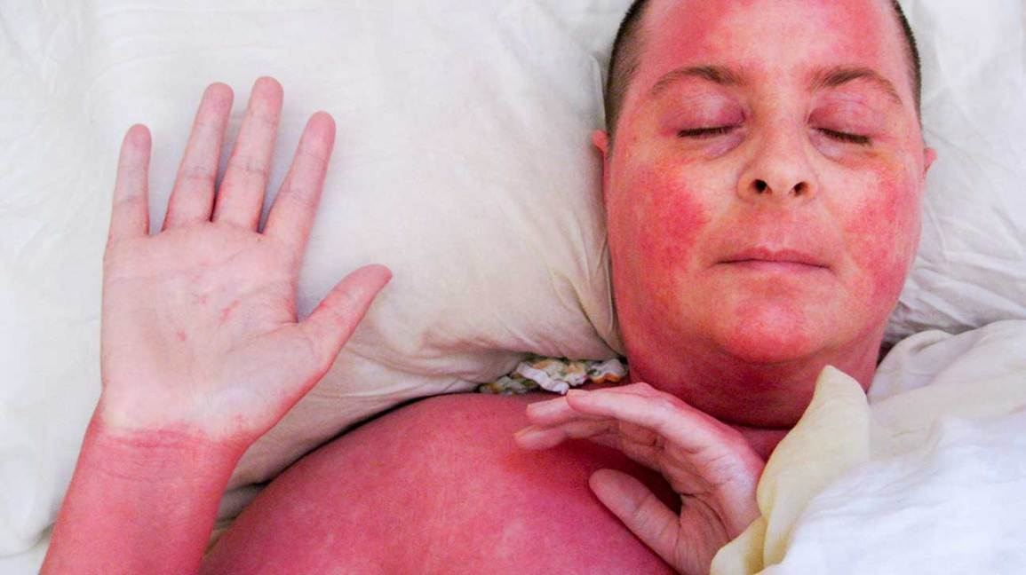 Red Skin Syndrome: Stages, Treatment, Healing, and More