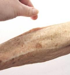 arm diagram skin [ 1296 x 728 Pixel ]