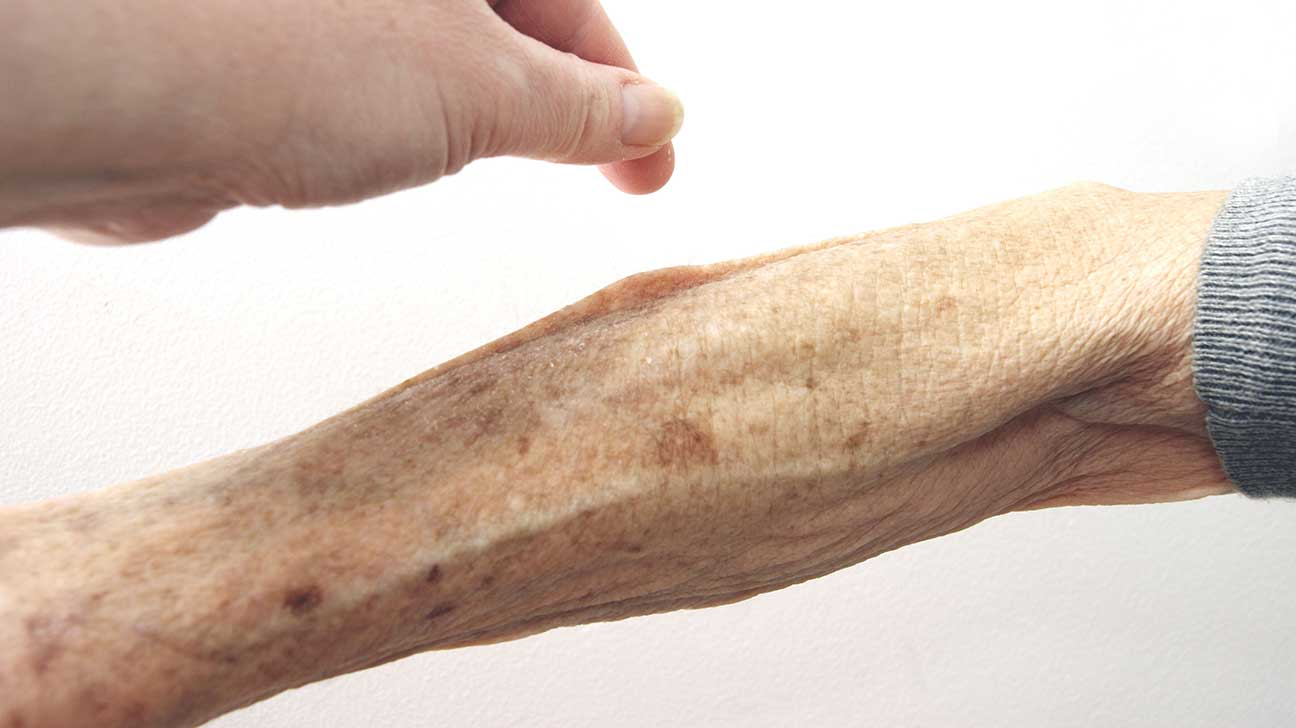 hight resolution of arm diagram skin