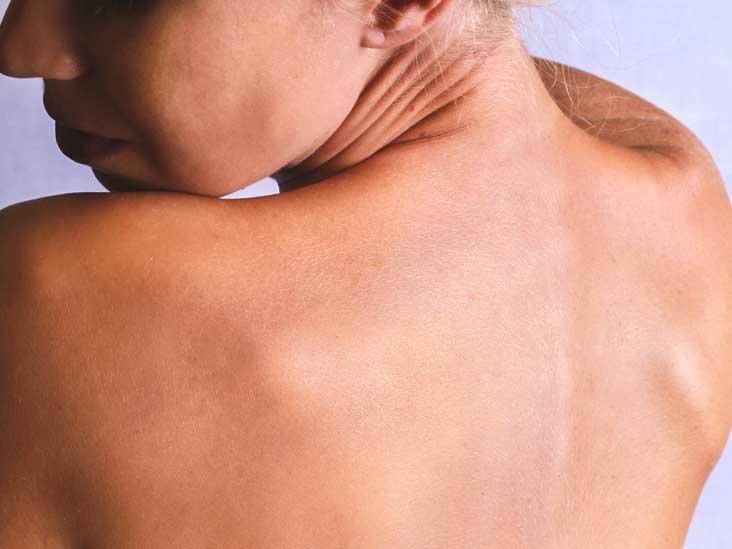 Dermatitis Neglecta: Symptoms, Risk Factors, and More