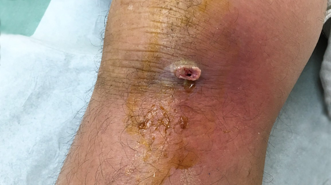 Infected Knee: Symptoms, Causes, and Treatment
