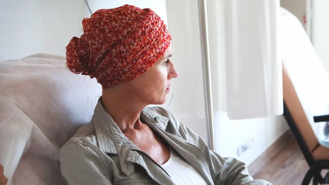managing chemo hair loss