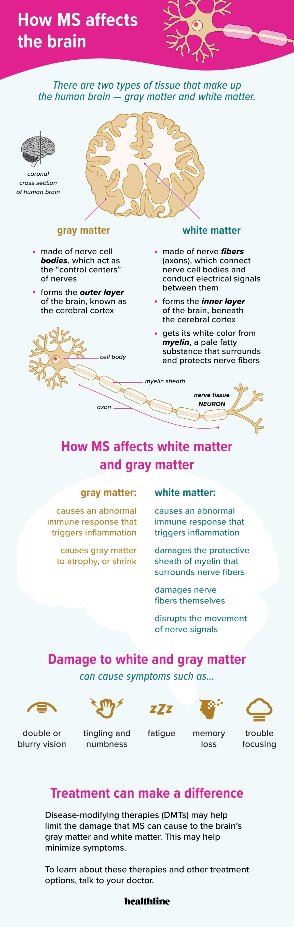 ms infographic