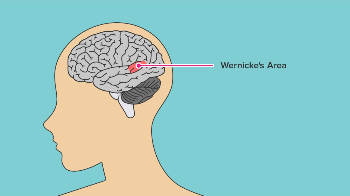 Wernickes Aphasia