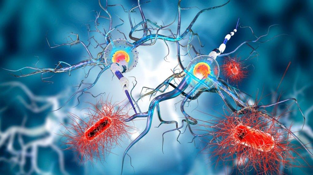Veste, kako prepoznati multiplo sklerozo ?