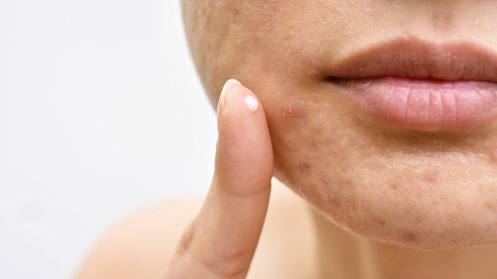 Kako se lotiti zdravljenja aken ?