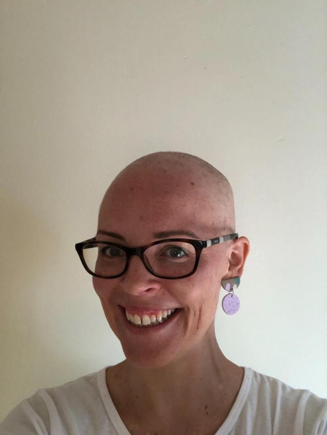 Kristy smiling after losing her hair.