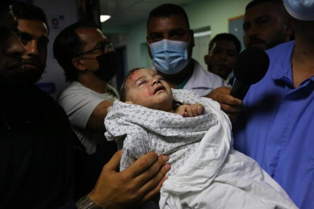 A two-month old baby injured in Israeli attack carried out to home of Palestinian Abu Khatab Familiy living in Al-Shati Camp in Gaza Strip, being brought to Shifa Hospital on May 15, 2021, in Gaza.