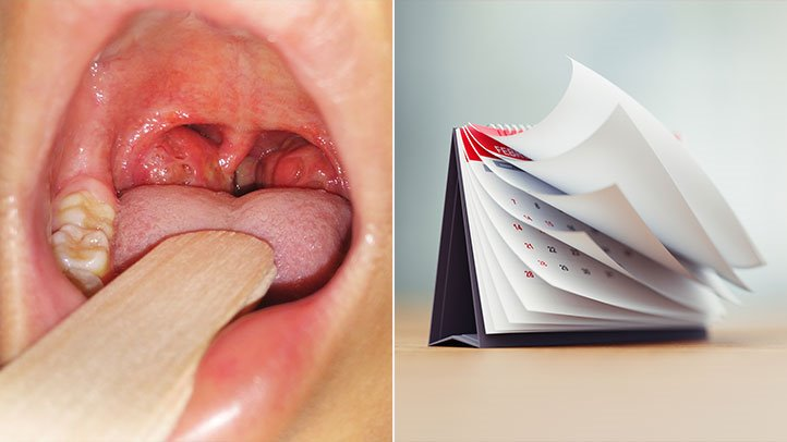 Chronic Tonsillitis and Recurrent Tonsillitis, Defined | Everyday ...