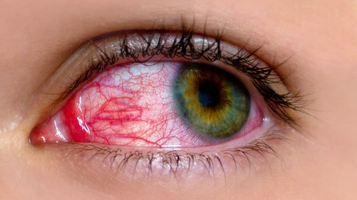 8 Common Myths About Pink Eye | Everyday Health