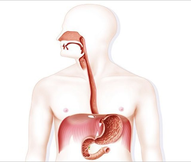 Could You Be At Risk For Esophagitis