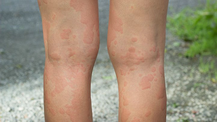 Chronic Hives and Other Hives Complications | Everyday Health