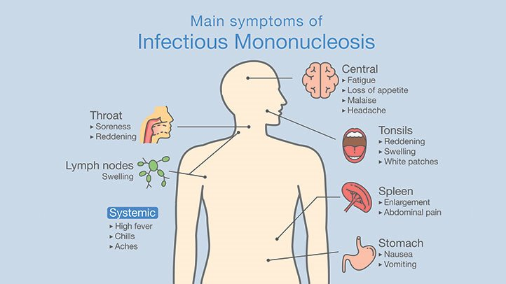 How You Know You Have Mononucleosis | Everyday Health