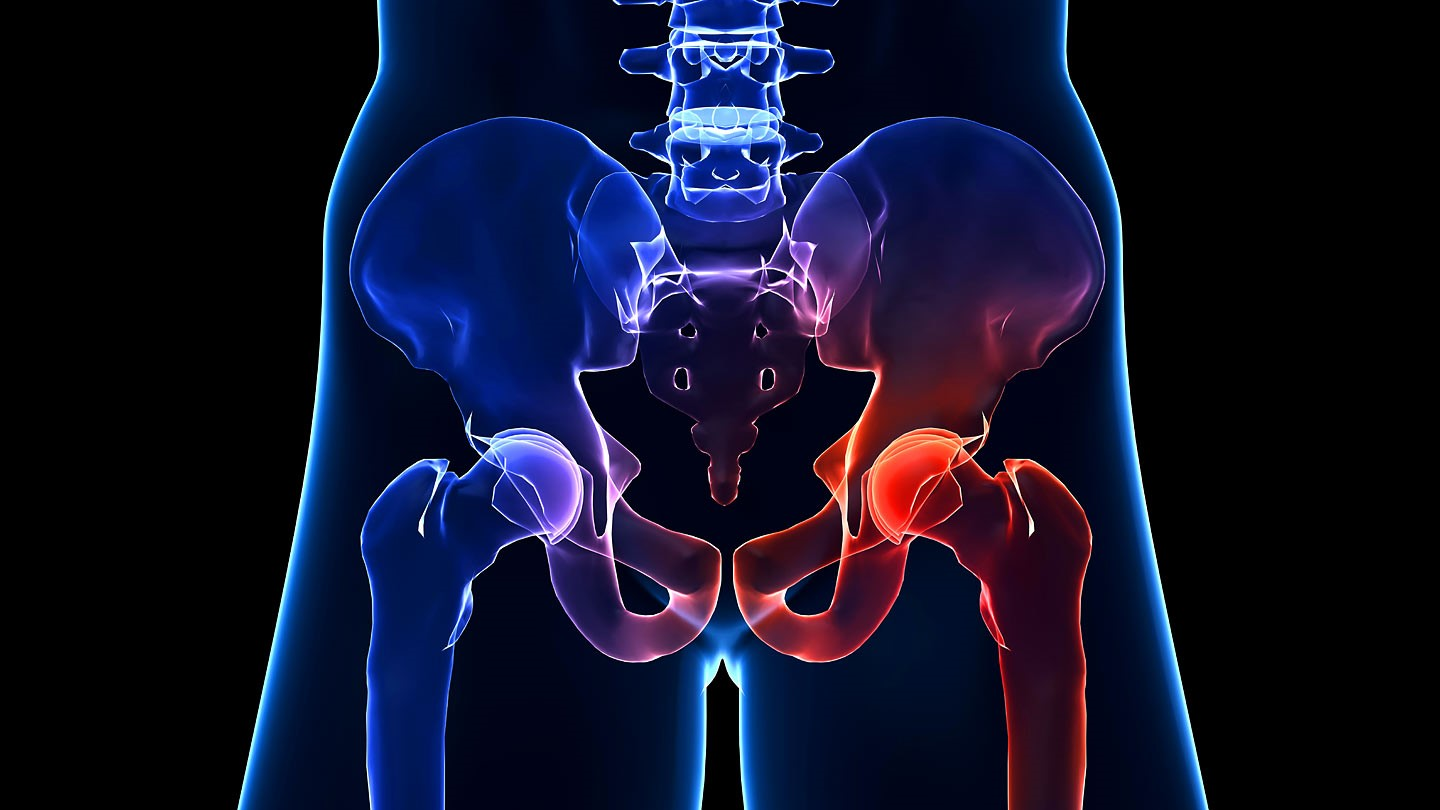 hight resolution of minimally invasive hip surgery isn t always the right choice