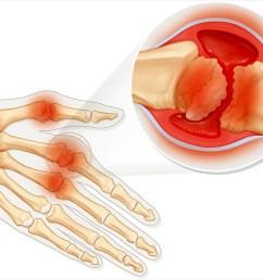 rheumatoid arthritis disease progression and symptoms an overview [ 1440 x 810 Pixel ]