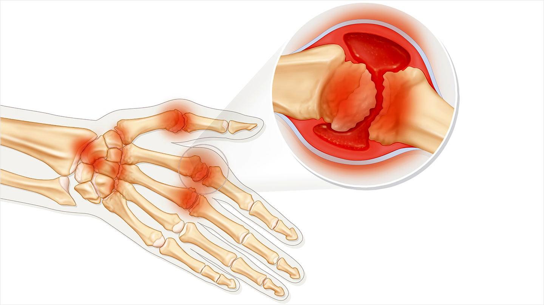 hight resolution of rheumatoid arthritis disease progression and symptoms an overview