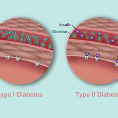 Venn Diagram Type 1 And 2 Diabetes Detailed Skeletal System What S The Difference Between High Levels Of Blood Sugar In Can Result From A Lack Insulin Or