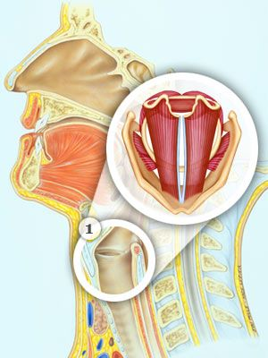ear nose and throat diagram 3d heart cross section common complaints everyday health the cause of hoarseness